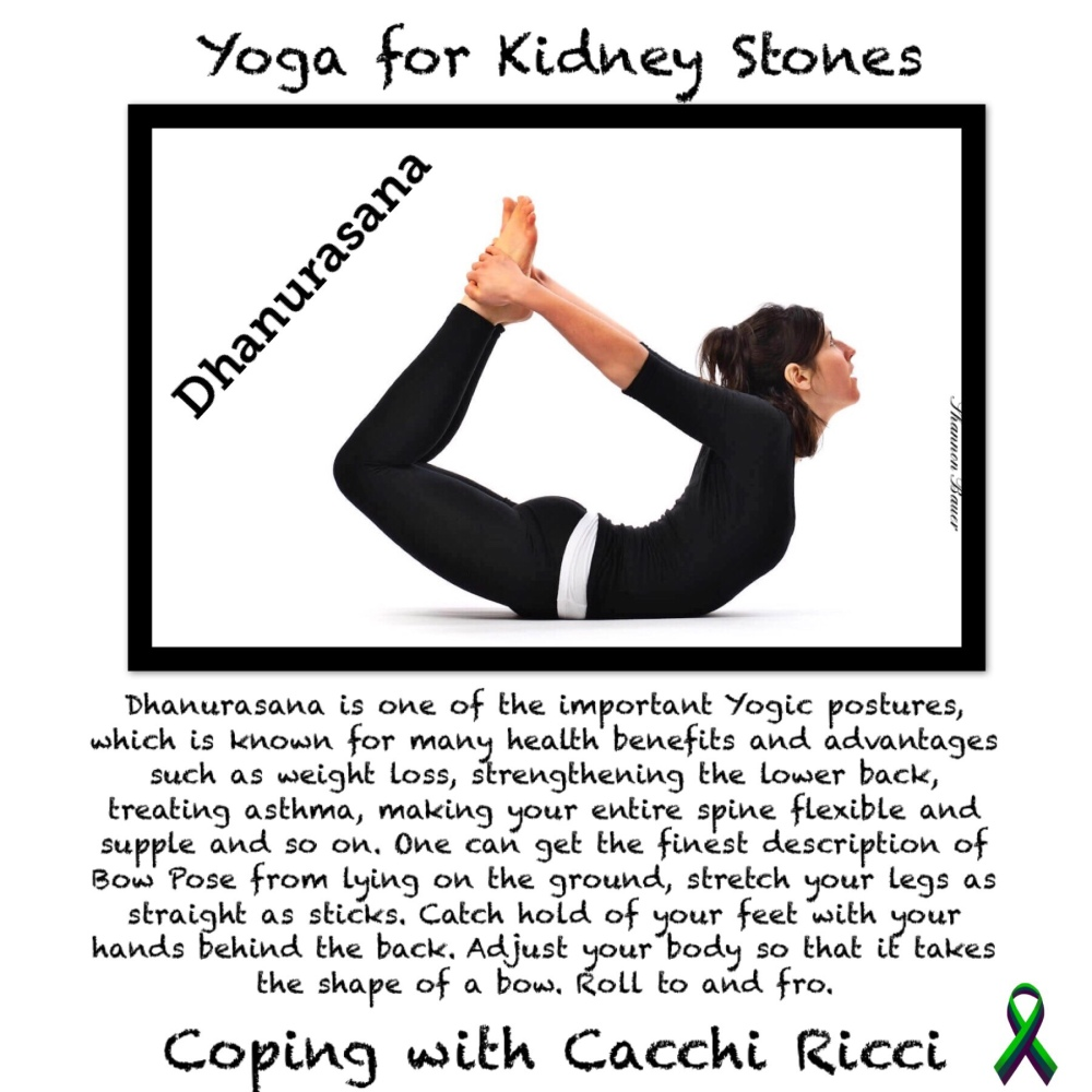 Yoga for Kidney Stones – Annie Au – Coping With Cacchi Ricci